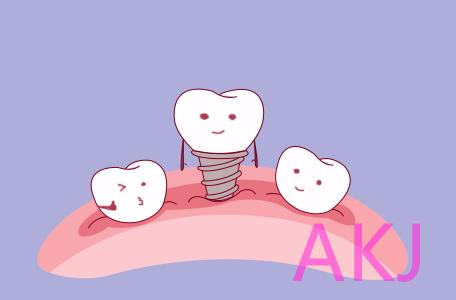 种植牙用多久