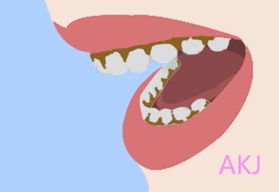 氟斑牙治疗
