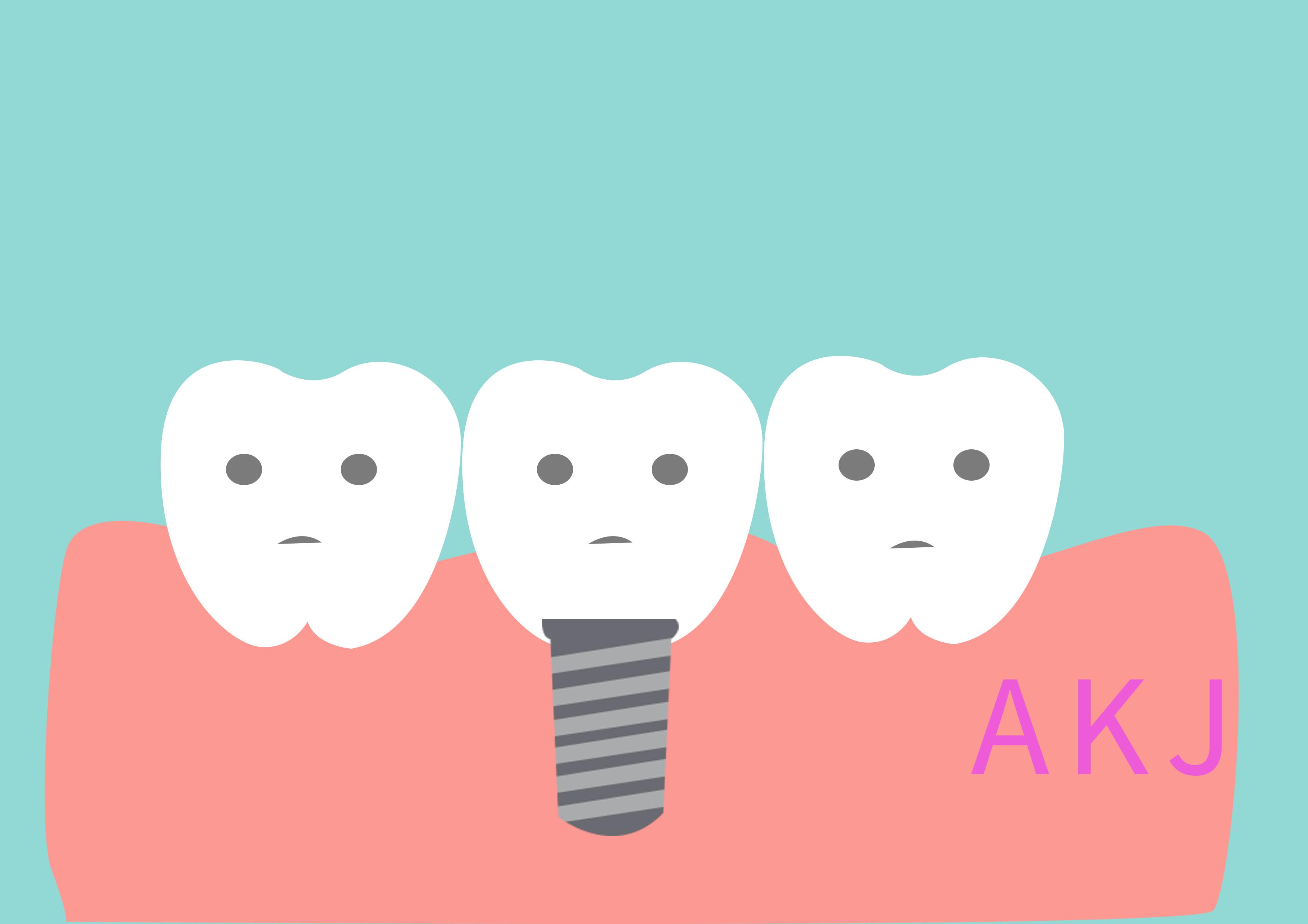 一颗种植牙要多少钱