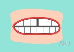 如果用树脂补牙缝的话一般能保持多久呢