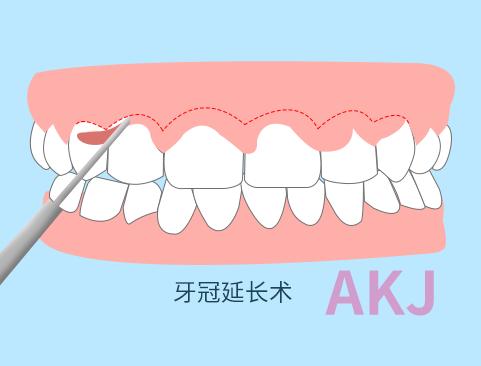 牙冠延长术