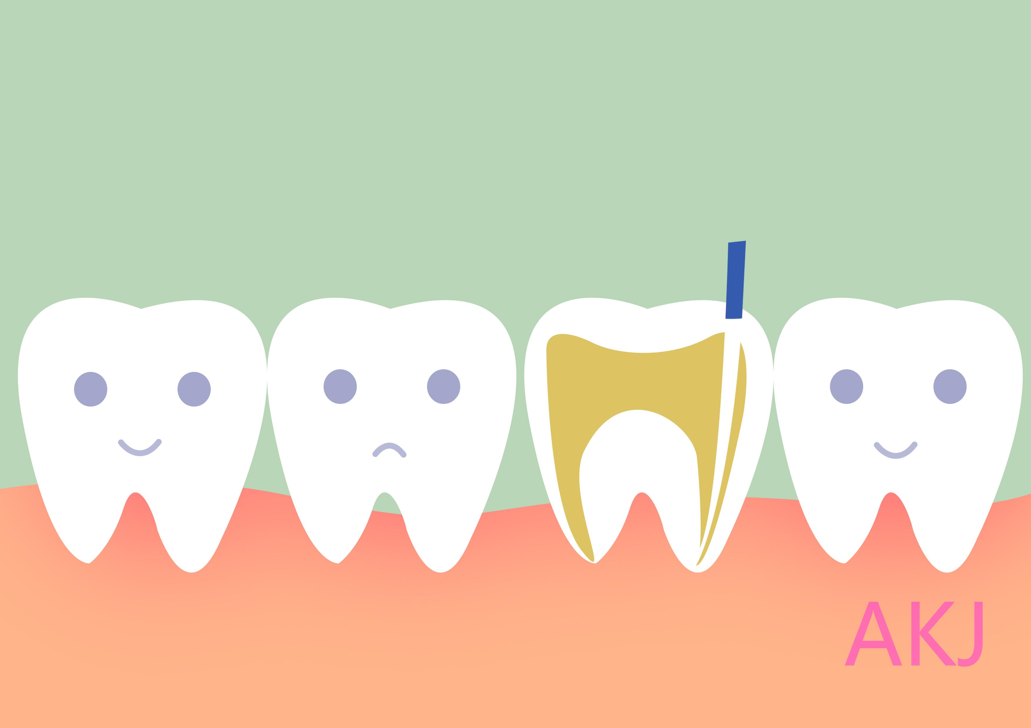 治疗牙髓炎
