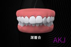 牙齿深覆合需重视,看看矫正前后的对比