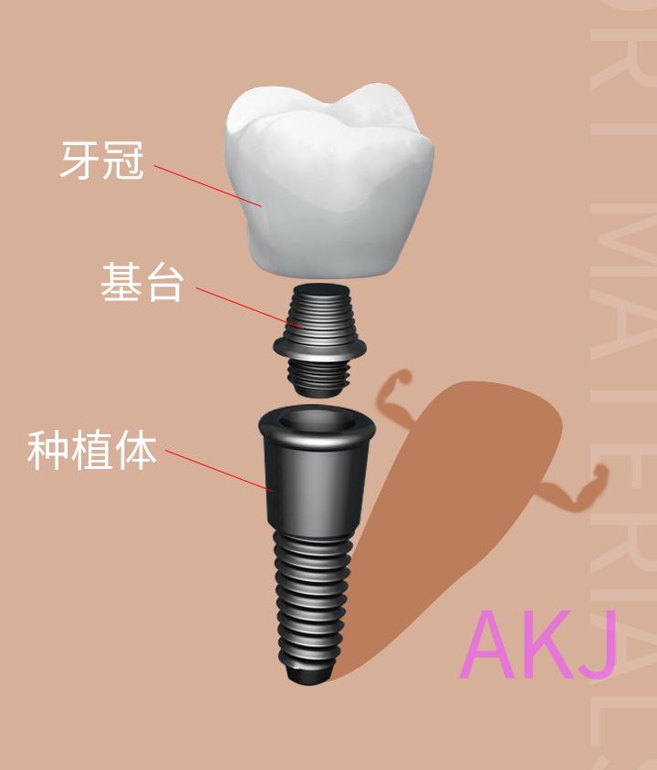 种植牙由哪几部分组成