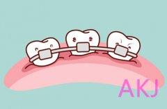 牙齿矫正反弹怎么办?医生来支招