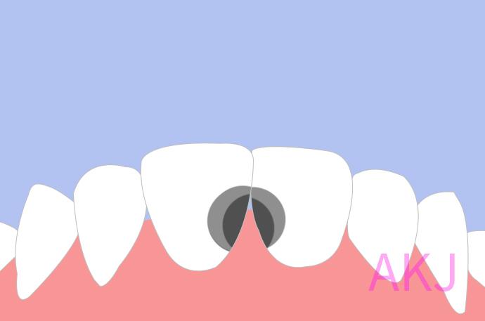 虫牙不痛需要治疗吗