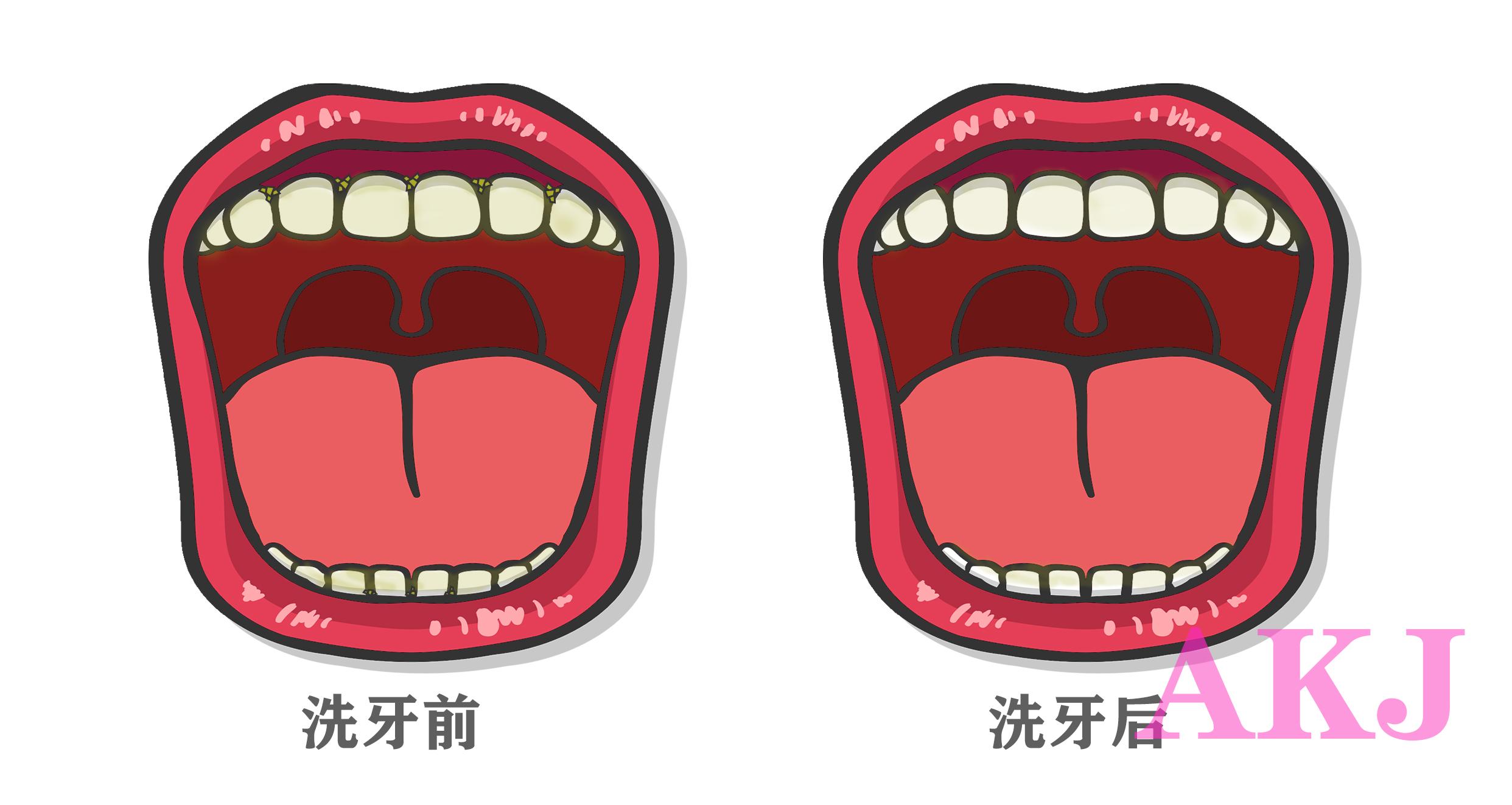超声波洁牙