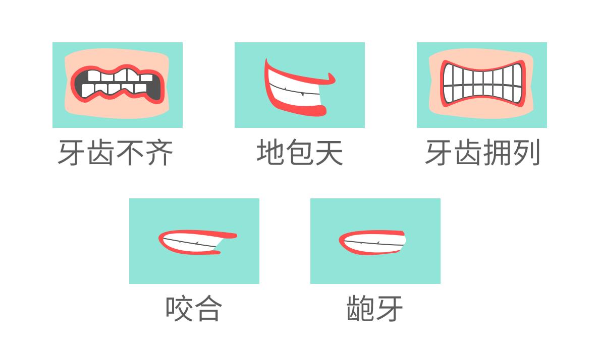 要做牙齿矫正的几种牙齿情况