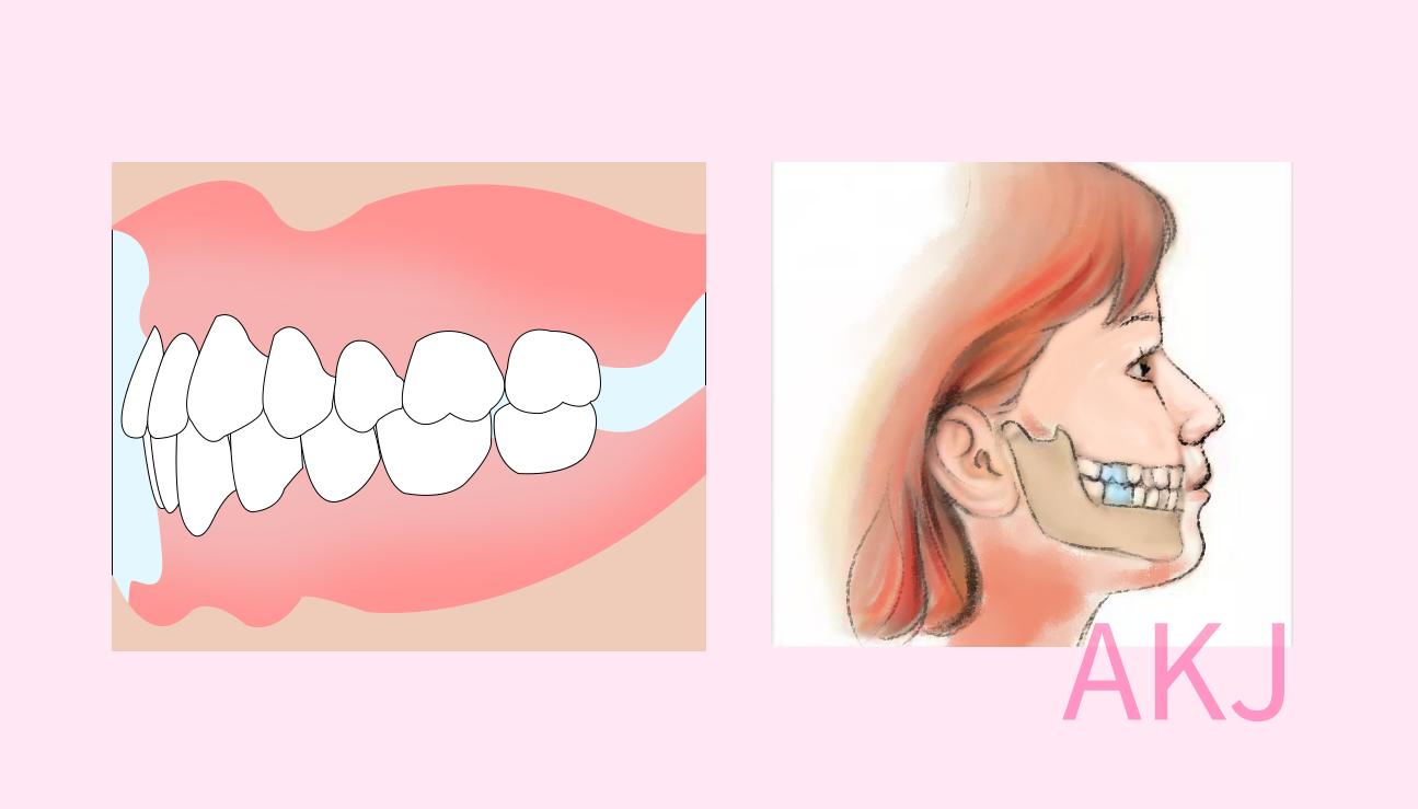 牙齿中线对齐