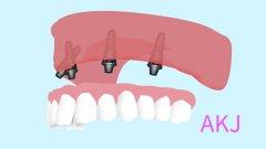关于种植牙的三个认知误区要避免