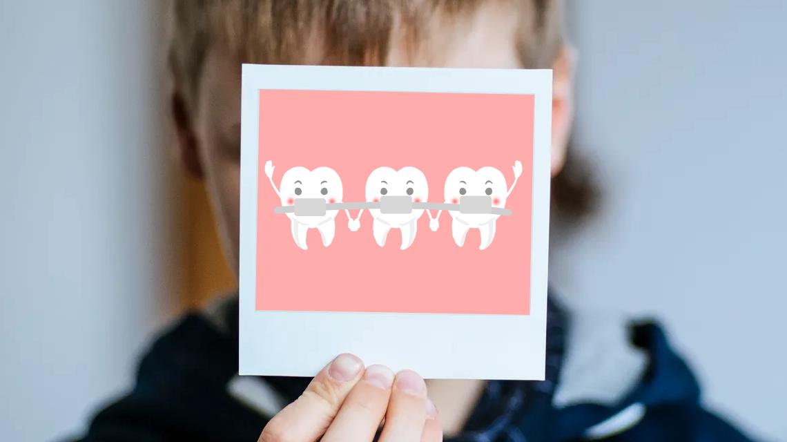 儿童龅牙矫正