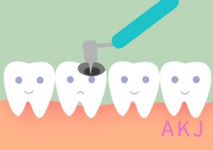 补了牙会不会越补越烂?听听医生怎么说