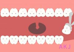 女性经期为什么不能拔牙?需要注意些什么呢