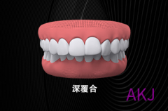 上牙包住下牙是正常的吗?听听医生怎么说