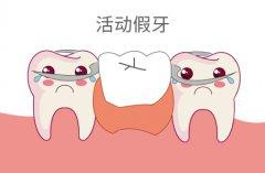 活动假牙好不好?活动假牙患者须知