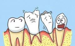 牙齿缺了一块能补吗?需分情况确定
