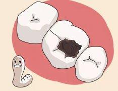蛀牙自己掉了怎么办?蛀牙掉了不管可以吗