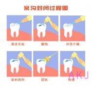 窝沟封闭能预防蛀牙吗?成年人可以做吗