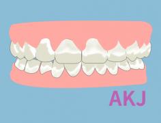 四环素牙做瓷贴面能永久美白吗